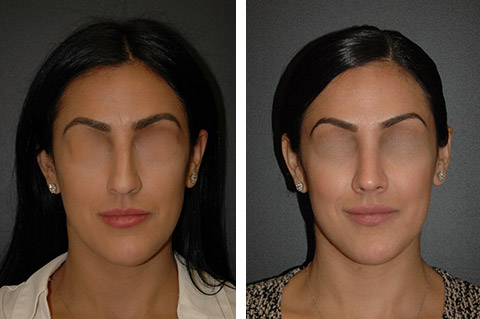 nyc rhinoplasty patient pictures