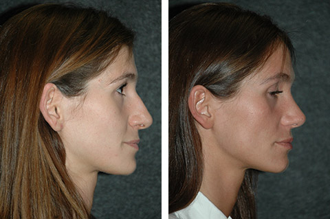 open rhinoplasty before and after photos