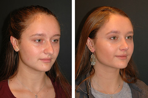 teen open rhinoplasty before and after patient photos