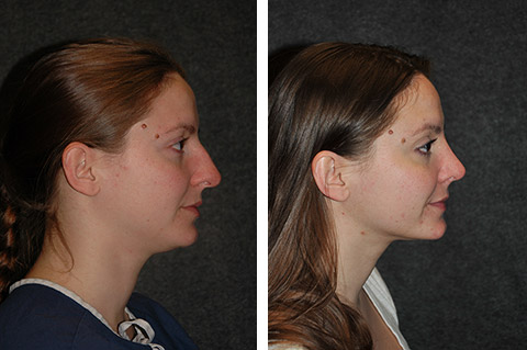 rhinoplasty patient before and after photos