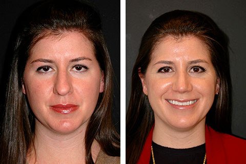 Closed Rhinoplasty Before and After Patient Photos
