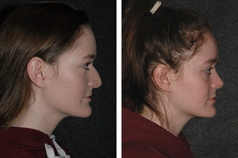 rhinoplasty patient photos