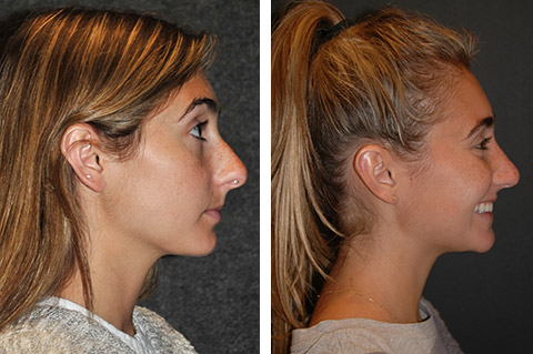 Closed Rhinoplasty Before and After NYC