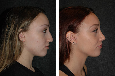 top new york rhinoplasty surgeon