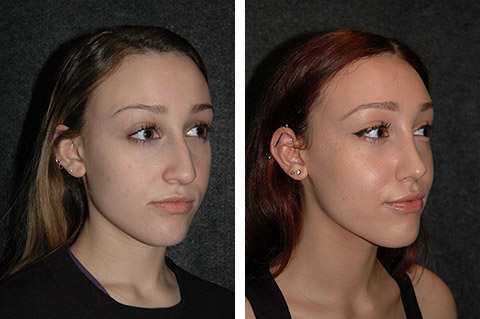 top new york rhinoplasty surgery photos