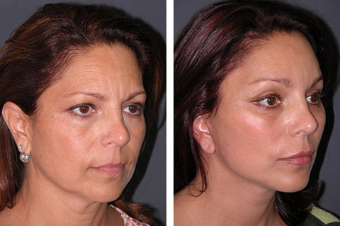short scar facelift patient photos