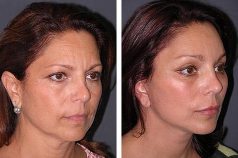 short scar facelift patient photos