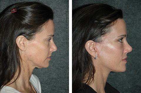 short scar facelift photos ny