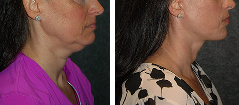 best smas facelift results
