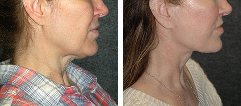 smas facelift patient photos ny