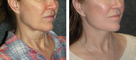 smas facelift patient photos