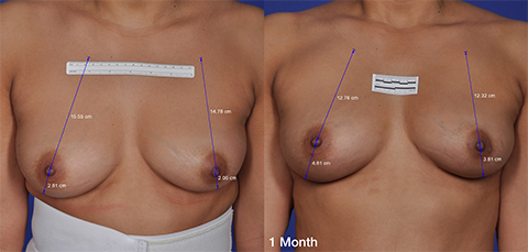 Thermitight Breast Skin Tightening before and after patient photos