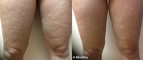 Thermitight Thigh Skin Tightening before and after patient photos