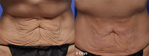 Thermitight Abdomen Skin Tightening before and after patient photos