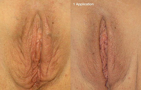 ThermiVa Vaginal Rejuvenation before and after patient photos