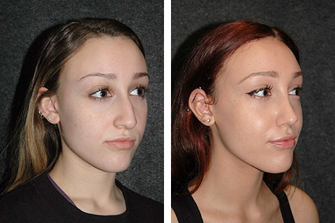 ultrasonic rhinoplasty before/after