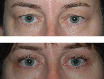 eyelid surgery before and after photos - patient 1