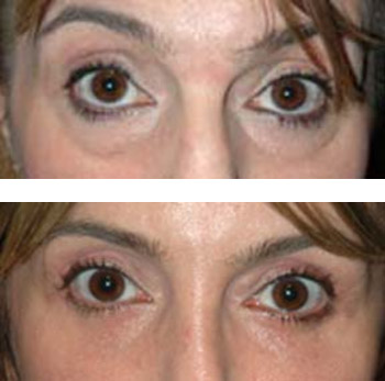 eyelid surgery before and after photos - patient 2