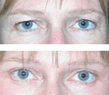 eyelid surgery before and after photos - patient 3