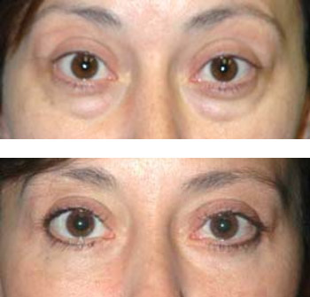 eyelid surgery before and after photos - patient 4