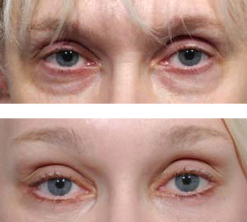 eyelid surgery before and after photos - patient 5