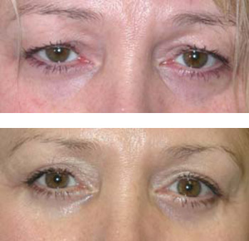 eyelid surgery before and after photos - patient 6