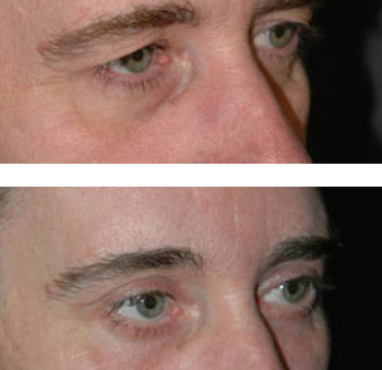 eyelid surgery before and after photos - patient 7