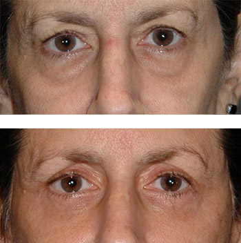 eyelid surgery before and after photos - patient 8