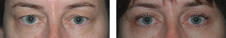 Eyelid Surgery photos - patient 1