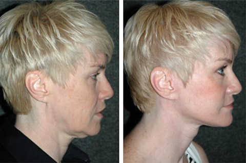 Facelift photos - patient 1