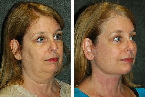 Facelift photos - patient 2