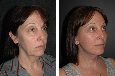Facelift photos - patient 3