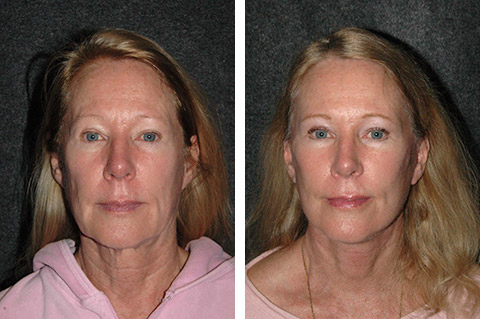 Facelift photos - patient 4
