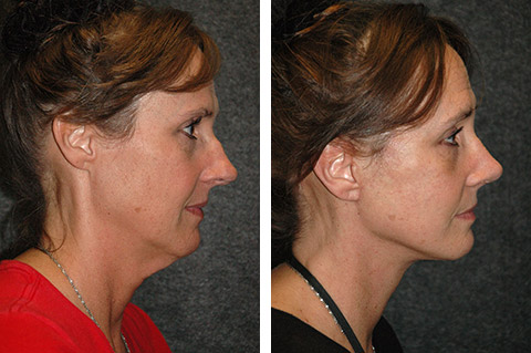 Facelift photos - patient 5