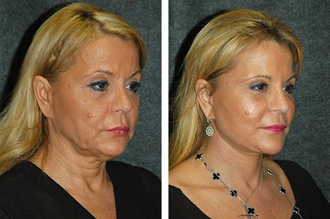 Facelift photos - patient 6