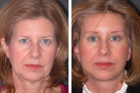 Lower Facelift photos - patient 1