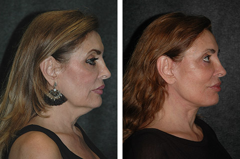 Mini Facelift photos - patient 1