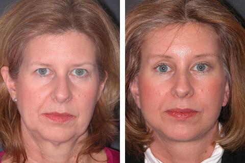 Mini Facelift photos - patient 2