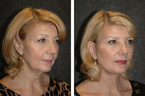 Mini Facelift photos - patient 3