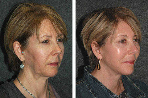 Mini Facelift photos - patient 4