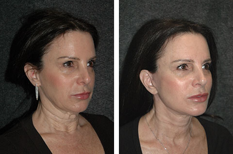 Mini Facelift photos - patient 5