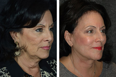 Mini Facelift photos - patient 6