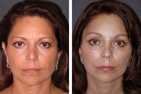 Short Scar Facelift photos - patient 1