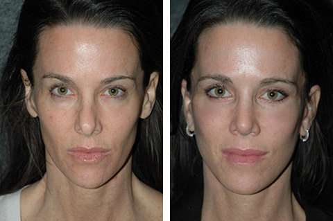 Short Scar Facelift photos - patient 2