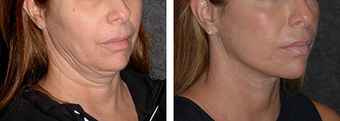 Short Scar Facelift photos - patient 3