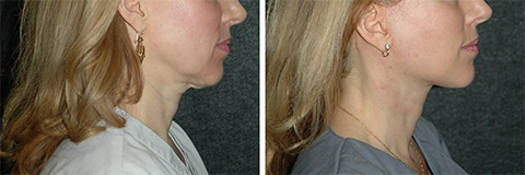 Short Scar Facelift photos - patient 4
