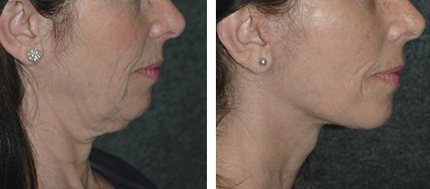SMAS Facelift photos - patient 1