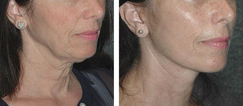 Facial plastic surgery techniques have advised