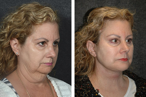 neck lift before and after photos - patient 1