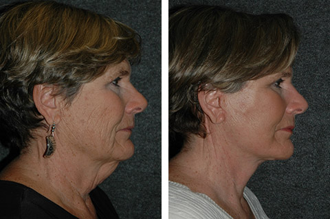 neck lift before and after photos - patient 2